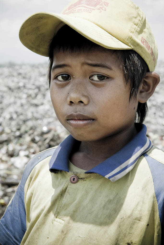 Anguish-faced child in revulsion at the stench of garbage. Makkasar dump. Indonesia.